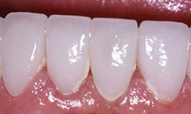 Flawlessly repaired bright white teeth