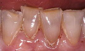 Severely discolored and yellow teeth