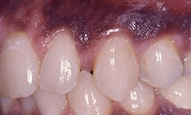 Teeth with large gaps between them