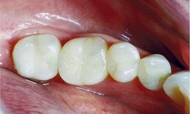 Dark silver fillings replaced with tooth-colored fillings