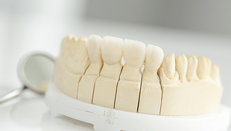 Model of dental implant bridge