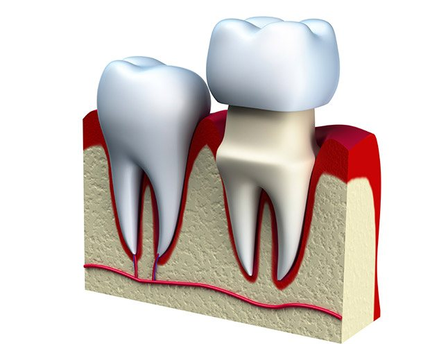 Animation of dental crown restoration