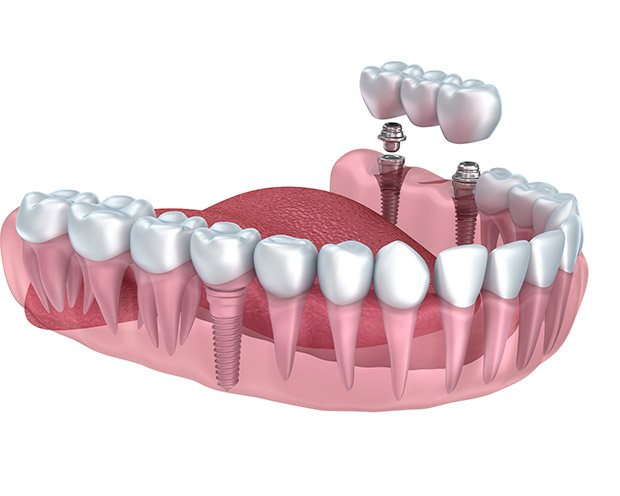 Animated image of smile with implant supported bridge
